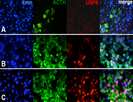 The USP8 mutations identified in adenomas of the pituitary gland lead to overproduction of ACTH. Panel A: ACTH-producing cells in a normal gland. The other panels show cells non-mutant (B) or mutant (C) for USP8. Credit: S. Sbiera, Universität Würzburg
